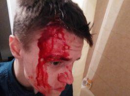 В Киеве жестко избили журналиста зафиксировавшего беспредел КП «Київблагоустрій»