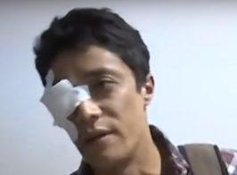 Нардепы из Оппоблока «выкололи» глаз председателю окружкома Байрамову, чтобы спасти его от «репрессий» СБУ